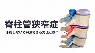 脊柱管狭窄症の痛みを手術しないで解決できる方法?つくばNピラティス!